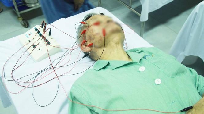 Bệnh nhân bị liệt mặt điều trị ở bệnh viện (Ảnh: BVCC)