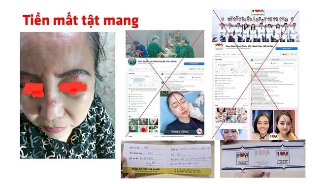 """Trang facebook mạo danh Bệnh viện Trung ương Quân đội 108 khiến người dân """"tiền mất, tật mang"""" (Ảnh - BVCC)"""