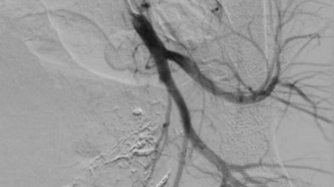 Hình ảnh sau nút mạch quanh động mạch trực tràng của bệnh nhân (Ảnh - BVCC)
