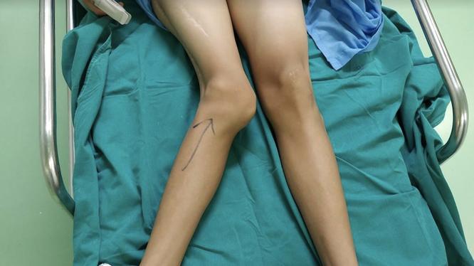 Khớp gối của thiếu niên 14 tuổi bị biến dạng (Ảnh - BVCC)