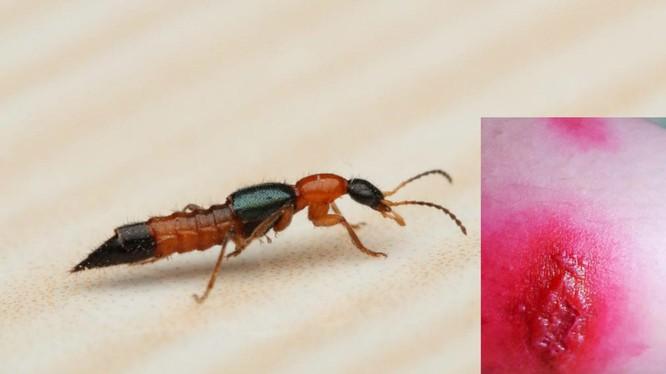 Vết phỏng da do kiến ba khoang cắn