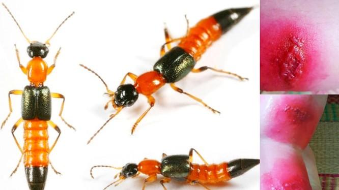 Những vết cắn của kiến ba khoang gây ra tổn thương nghiêm trọng cho da
