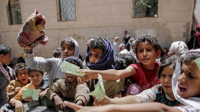 Những trẻ em chịu nạn đói ở Yemen.