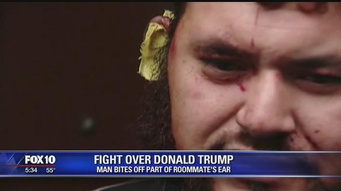 Tranh luận về Tổng thống Trump, một người Mỹ bị cắn đứt tai
