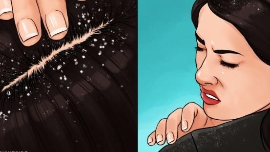 Vảy gàu gây ngứa da đầu là nỗi ám ảnh của nhiều người. Ảnh: Brightside