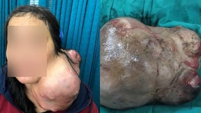 Bệnh viện Chợ Rẫy mổ tách thành công khối u nặng 3kg trên cổ bệnh nhân. Ảnh: BVCC