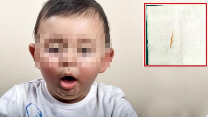 Bé gái hơn 1 tuổi nuốt cây tăm dài 5cm vào dạ dày. Ảnh minh họa