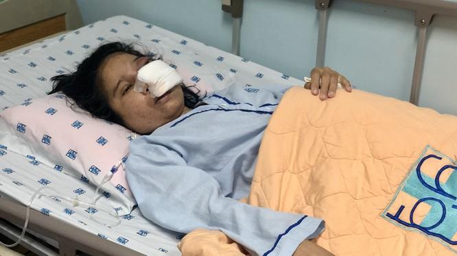 Thai phụ 29 tuần tuổi mắc bệnh hiếm gặp, nguy kịch đến tính mạng và thai nhi. Ảnh: BVCC
