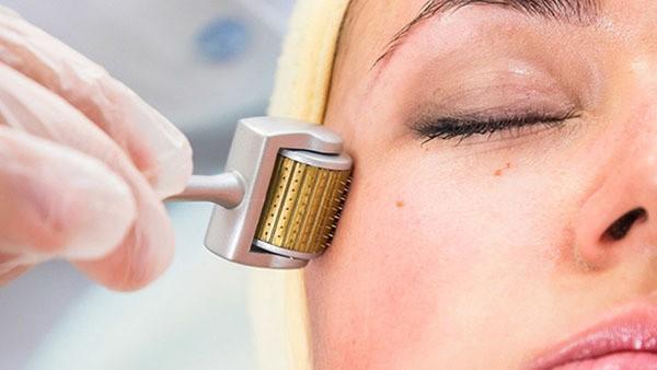 Lăn kim tại spa, một phụ nữ bị phù nề da mặt, mưng mủ. Ảnh minh họa: Internet