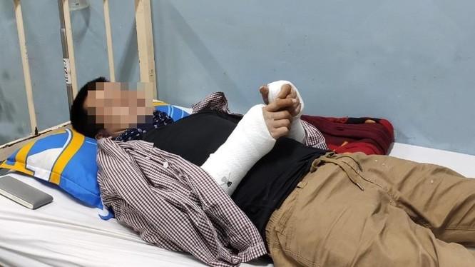 Một nạn nhân đang được điều trị tại BV Nhân dân Gia Định. Ảnh: BVCC