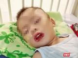 Bé trai không may bị uống nhầm thuốc tẩy bồn cầu, dẫn tới loét miệng và thực quản, dạ dày (Ảnh: BVCC)
