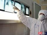 Bác sĩ chuyên khoa điều trị tại Khoa Bệnh Nhiệt đới (Bệnh viện Chợ Rẫy) - Ảnh: BVCR
