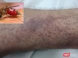 Bệnh nhân bị xuất huyết nặng dưới da do mắc sốt xuất huyết trên nền bệnh tan máu bẩm sinh.