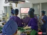 Các bác sĩ phẫu thuật cắt u gan nội soi cho bệnh nhân.
