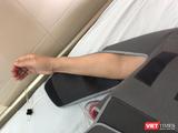 Cánh tay của cô Th. hồi phục sau khi được thay xương bả vai (Ảnh: bác sĩ Phạm Sơn Tùng)