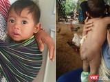 Bé trai 7 tháng tuổi người dân tộc Châu Mạ mang khối u khổng lồ ở mông