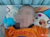 Bé trai 3 tháng tuổi bị tràn dịch phổi, nguy kịch tính mạng