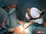 Bác sĩ BV Nhi đồng 1 phẫu thuật tách cặp em bé song sinh dính liền gan