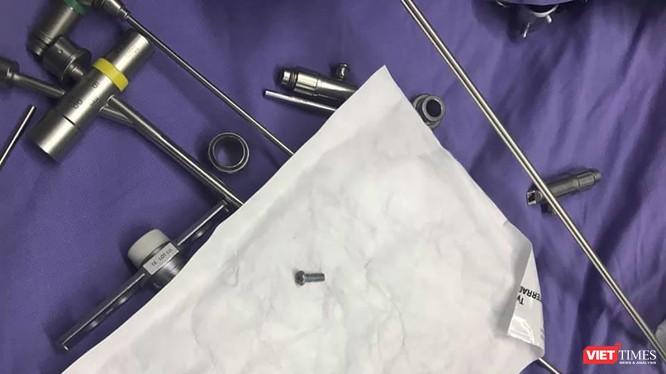 Đinh vít nằm ở đường thở của bệnh nhân nhi tên N. ở Quảng Nam sau khi nội soi gắp ra.