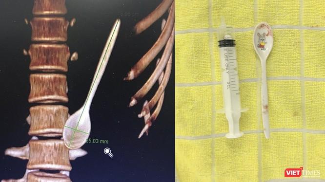 Hình ảnh thìa nhựa bên trong đường tiêu hoá của bệnh nhân từ phim chụp và sau khi lấy ra ngoài