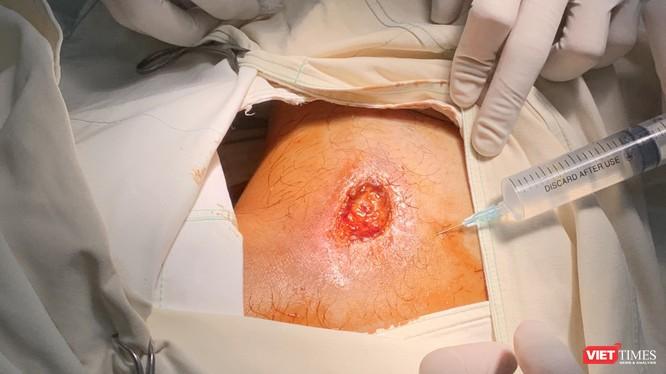 Ảnh chụp trong quá trình điều trị cho bệnh nhân sau khi nhập viện vào BV Quốc tế Minh Anh (Nguồn: BVCC)