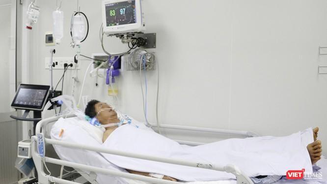 Một nạn nhân của chùm ca bệnh trước đó, cũng bị ngộ độc pate chay phải thở máy trong BV Chợ Rẫy (Ảnh: BVCC)