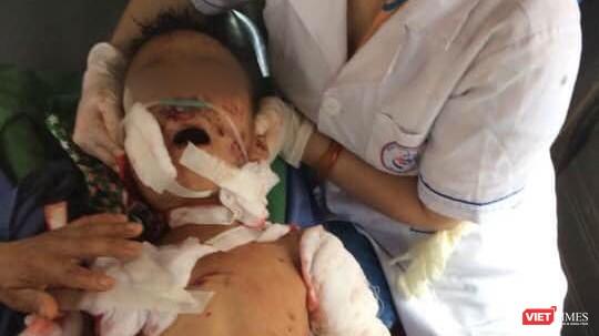 Một trường hợp trẻ em bị thương nặng do chó nhà tấn công