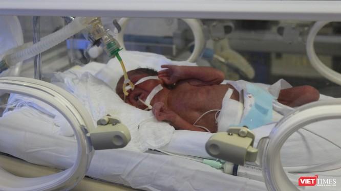 Em bé Bình An đang được điều trị tích cực tại Bệnh viện Phụ sản Trung ương sáng 24/5.