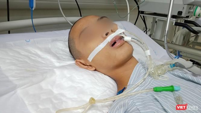 Bệnh nhi hôn mê, thở máy, điều trị đã nhiều ngày tại Khoa Truyền nhiễm, Bệnh viện Nhi Trung ương vì mắc bệnh viêm não Nhật Bản