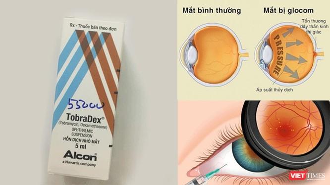 Tự ý sử dụng thuốc Tobradex, đôi mắt có thể bị tổn thương nặng, thậm chí mù lòa.