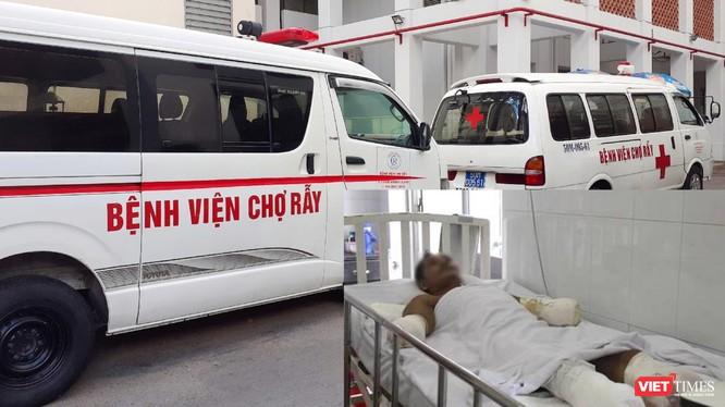 Bệnh nhân bị phỏng điện đang điều trị tại Bệnh viện Chợ Rẫy