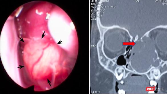 Bé trai 15 tháng tuổi bị lồi mắt, nghẹt mũi vì khối u lớn chèn ép. Ảnh: BVCC