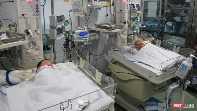 Hai bé song sinh dính liền gan đã được Bệnh viện Nhi đồng 1 phẫu thuật tách rời thành công. Ảnh: Anh Thư