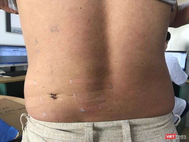 Sau mổ, bệnh nhân hoàn toàn khỏe mạnh, vết mổ nhỏ, ít xâm lấn