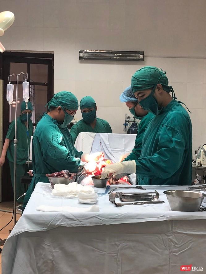 Các bác sĩ BV Thạch Thất đã có nhiều ca mổ cứu sống trẻ sơ sinh trong gang tấc
