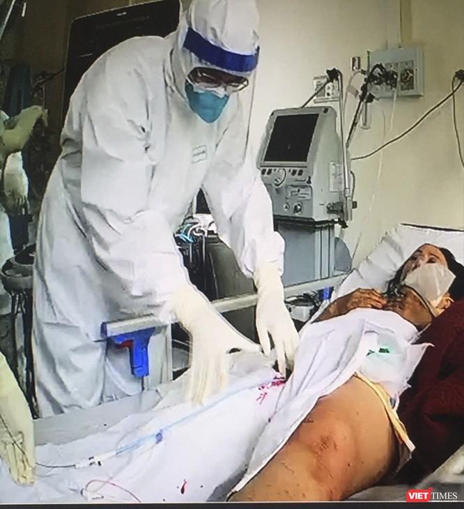 Huế: Can thiệp đặt filter cứu bệnh nhân mắc COVID-19 diễn tiến nặng ảnh 1
