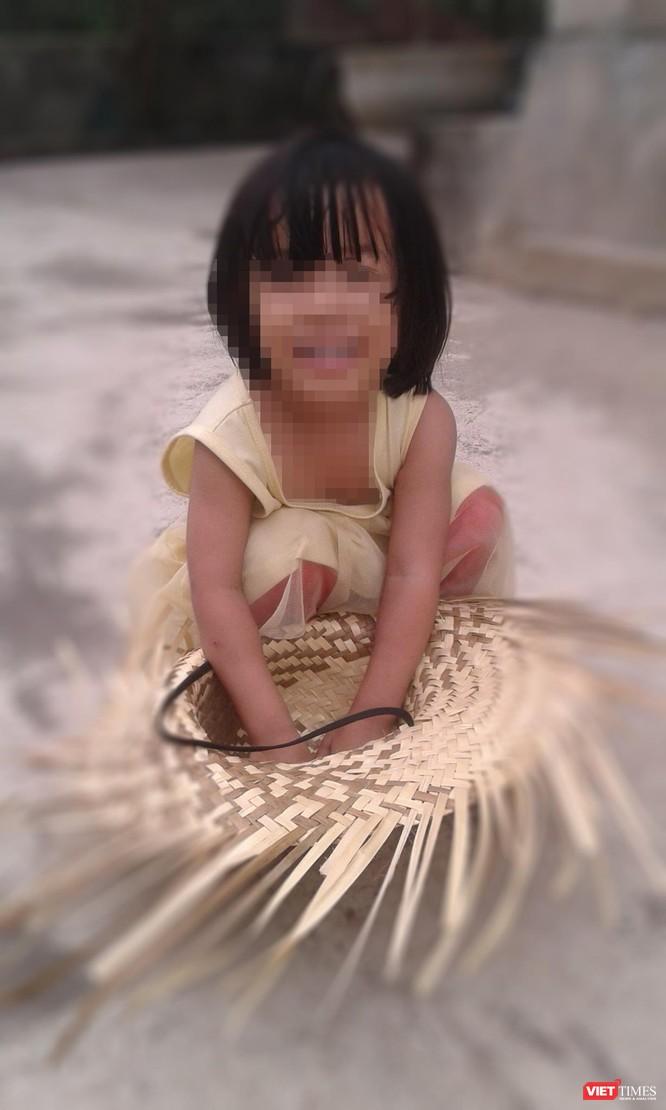 Vì sao công an Nhà Bè chậm công bố kết quả giám định vụ nghi xâm hại bé 3 tuổi? ảnh 1