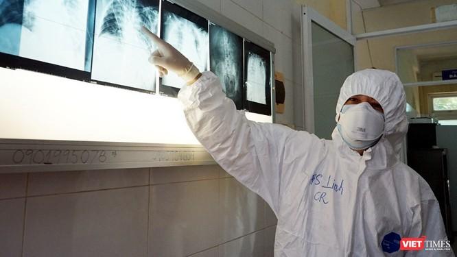 BN416 bắt đầu xơ phổi, nặng hơn cả tình trạng phổi đông đặc của BN91 ảnh 1
