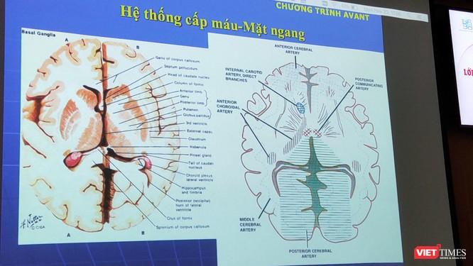 Bác sĩ lưu ý vận động sớm mới có thể phục hồi chức năng sau đột quỵ ảnh 1