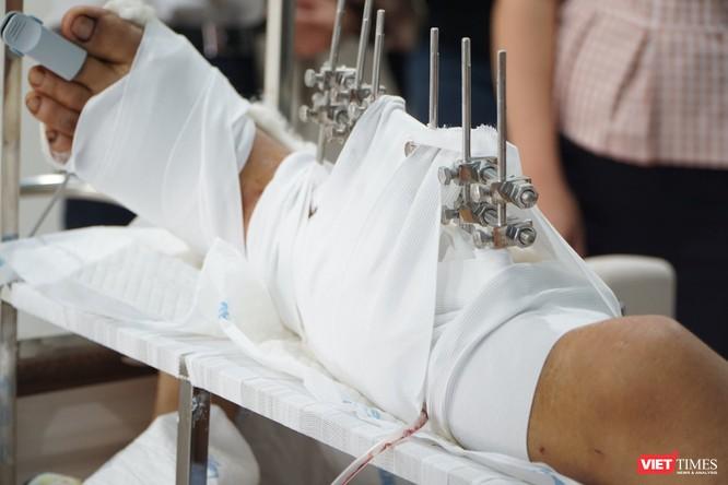 Cấp cứu kịp thời, Bệnh viện Quân Y 175 giữ được chân cho bệnh nhân bị chém ảnh 1