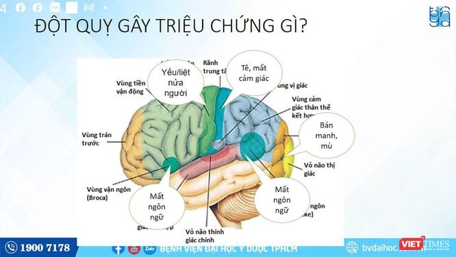 Bác sĩ chuyên khoa cảnh báo bệnh đột quỵ khiến tử vong hàng đầu tại Việt Nam ảnh 2