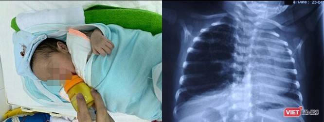 Trẻ khò khè, hay bị viêm phổi: Có thể đã bị dị dạng đường thở ảnh 1