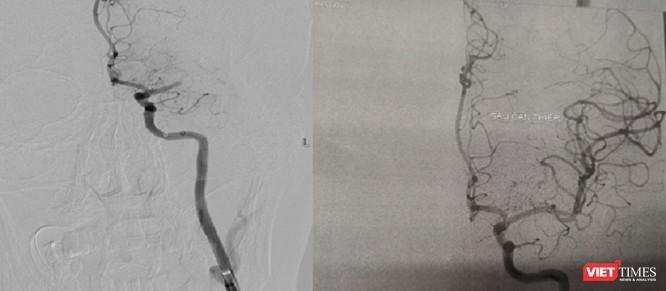 Hy hữu: Vừa nhồi máu cơ tim, vừa tai biến mạch máu não cấp ảnh 2