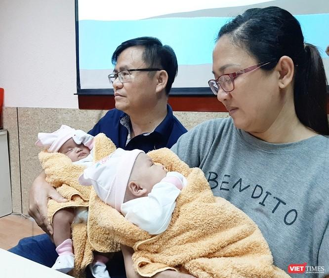 Hai bé song sinh dính liền gan tại Bệnh viện Nhi đồng 1 được xuất viện ảnh 1