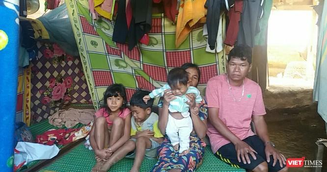 Bé trai 7 tháng tuổi người dân tộc Châu Mạ mang khối u khổng lồ ở mông ảnh 7