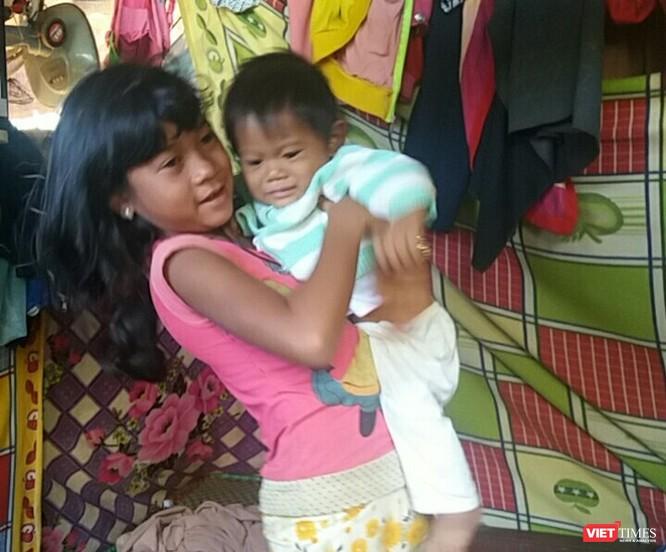 Bé trai 7 tháng tuổi người dân tộc Châu Mạ mang khối u khổng lồ ở mông ảnh 6