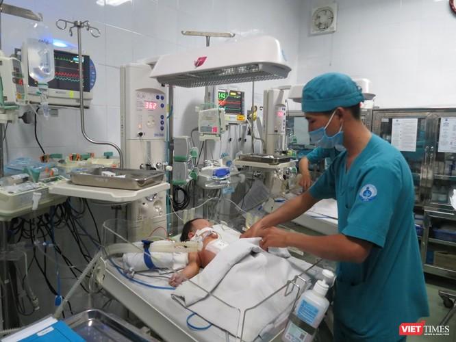 Thực hiện phẫu thuật tách hai em bé khi mới 1,5 tháng tuổi có phải quá sớm? ảnh 2