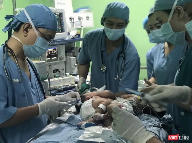 Bệnh viện Nhi đồng 1 TP.HCM mổ tách thành công cặp song sinh dính liền gan nhỏ nhất ảnh 1