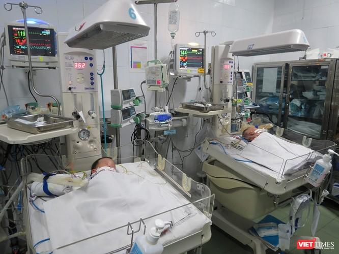 Thực hiện phẫu thuật tách hai em bé khi mới 1,5 tháng tuổi có phải quá sớm? ảnh 1
