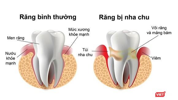 Mất răng do bệnh nha chu (Ảnh: cung cấp)